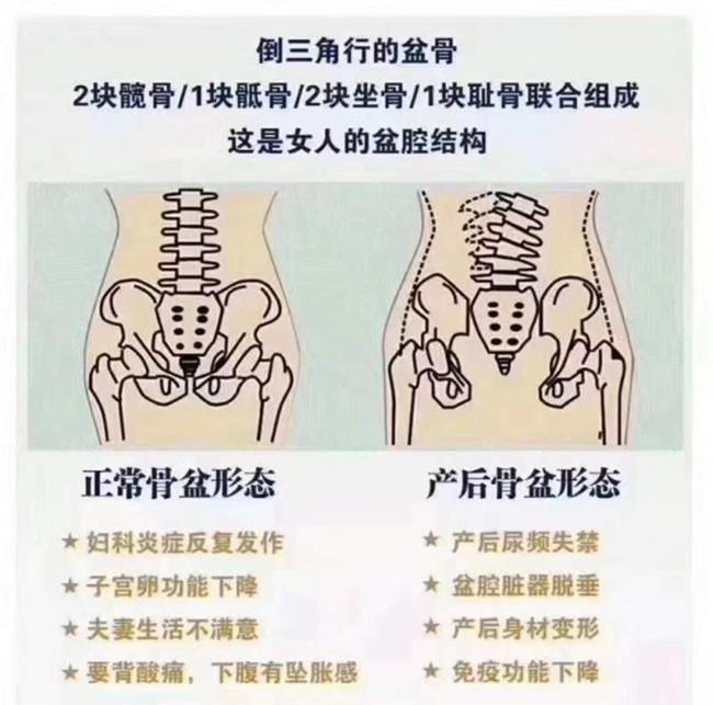 骨盆變化1_副本.jpg