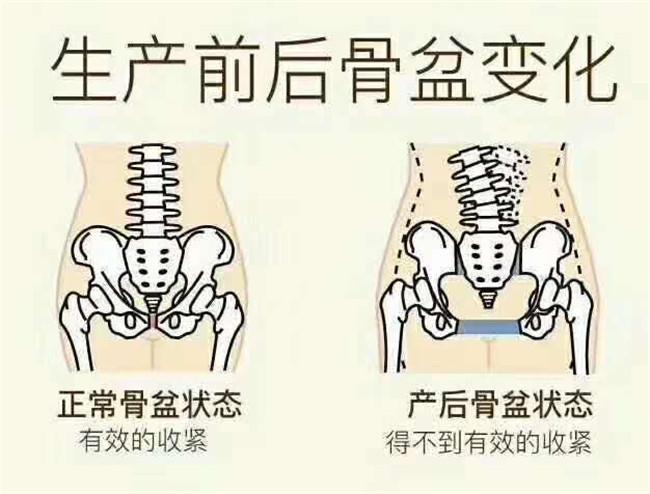 骨盆變化_副本.jpg